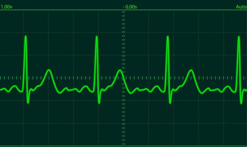 heart-monitor-screen