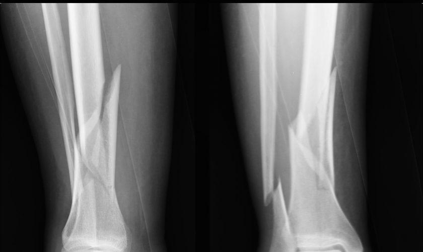 r-frattura-di-gamba-immaggine-preoperatoria